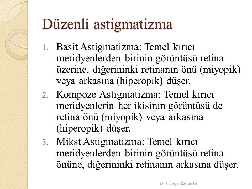 Düzenli astigmatizma