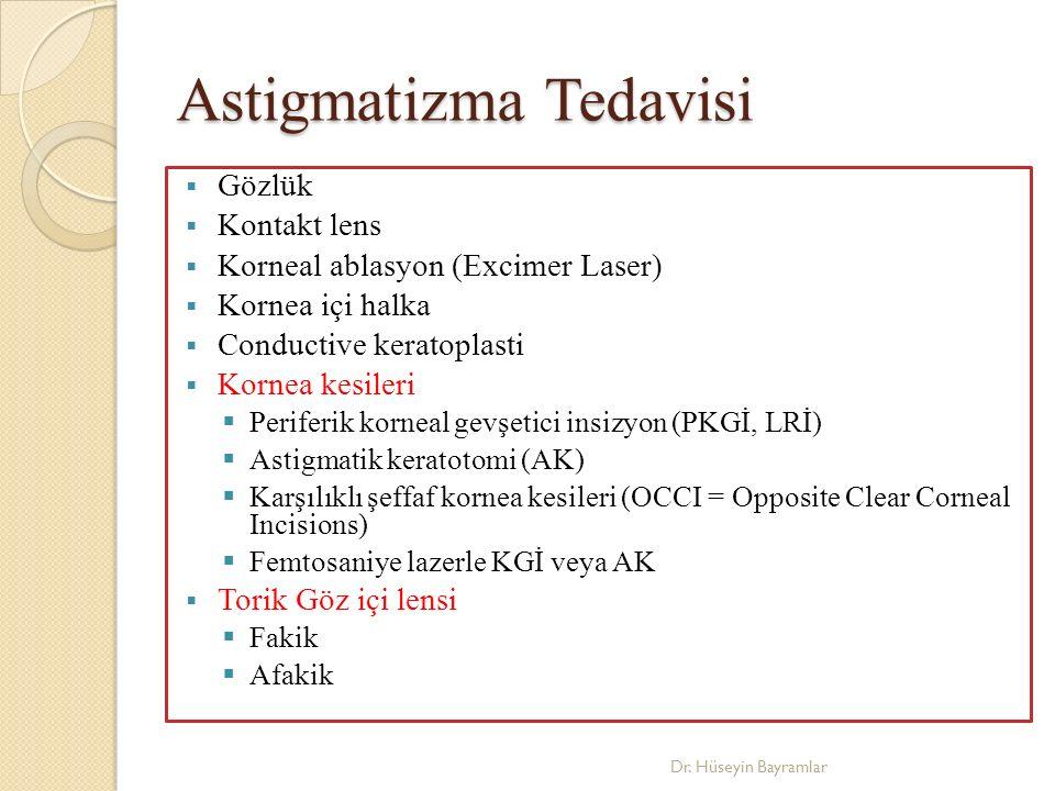 Astigmatizma Tedavisi
