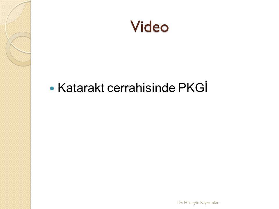 Video Katarakt cerrahisinde PKGİ Dr. Hüseyin Bayramlar