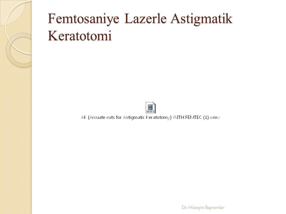 Femtosaniye Lazerle Astigmatik Keratotomi