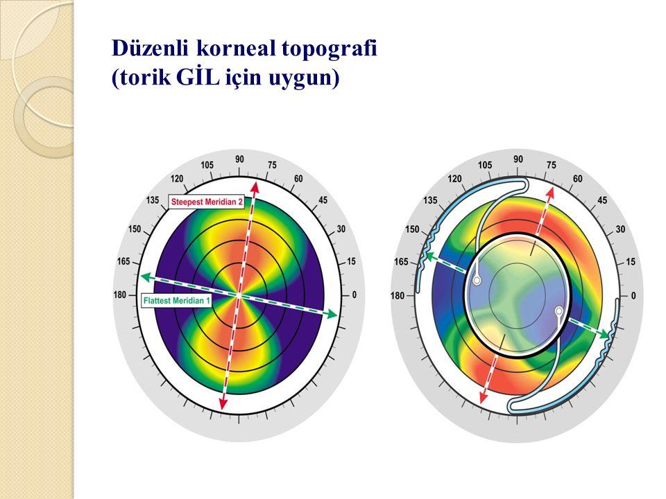 Düzenli korneal topografi (torik GİL için uygun)