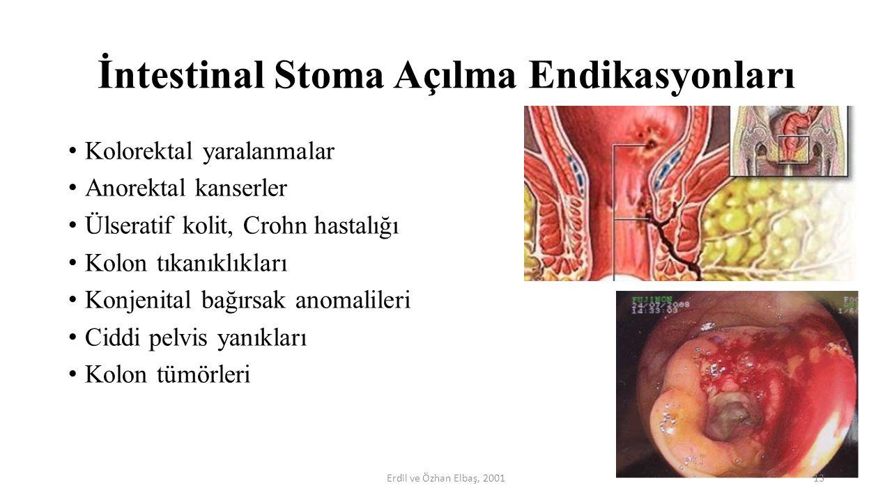 İntestinal Stoma Açılma Endikasyonları