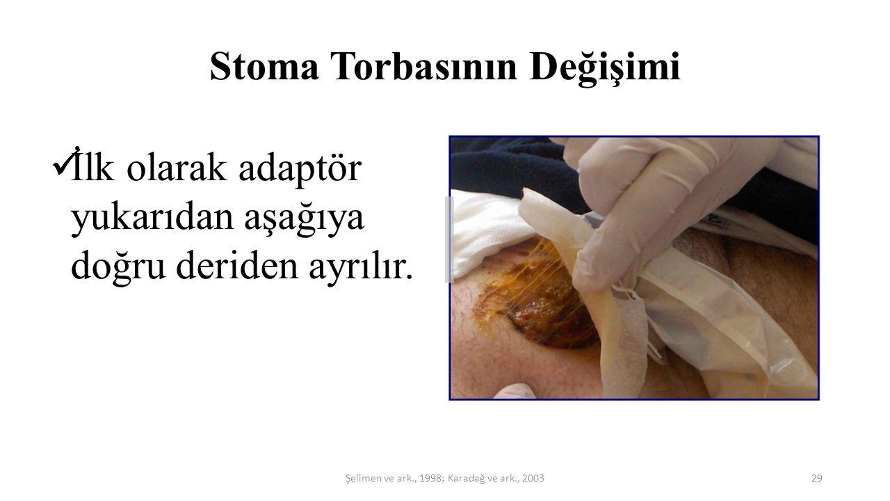 Stoma Torbasının Değişimi