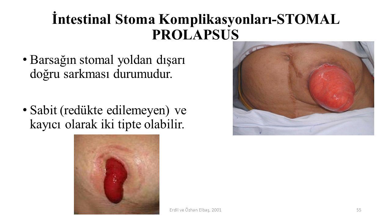 İntestinal Stoma Komplikasyonları-STOMAL PROLAPSUS