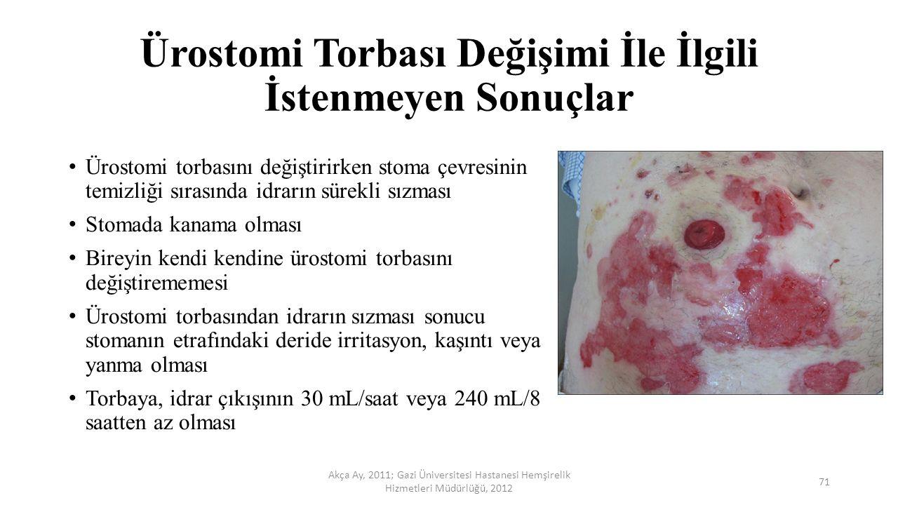 Ürostomi Torbası Değişimi İle İlgili İstenmeyen Sonuçlar