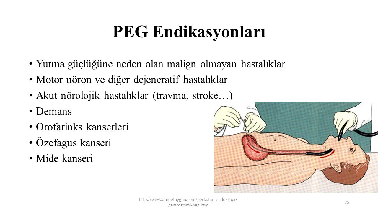 PEG Endikasyonları Yutma güçlüğüne neden olan malign olmayan hastalıklar. Motor nöron ve diğer dejeneratif hastalıklar.