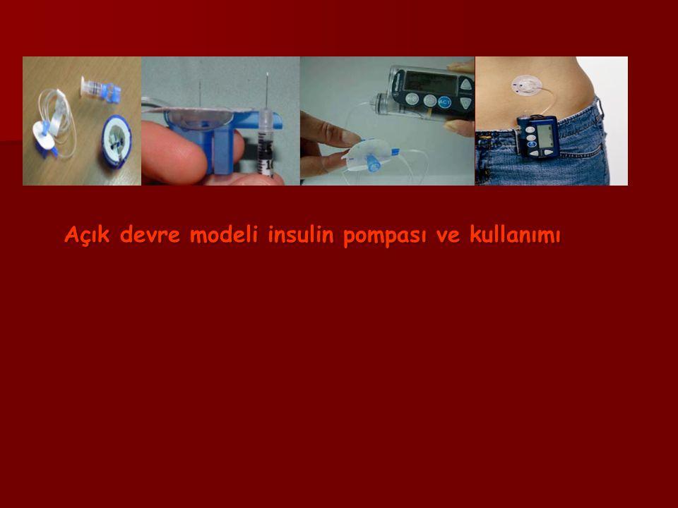 Açık devre modeli insulin pompası ve kullanımı