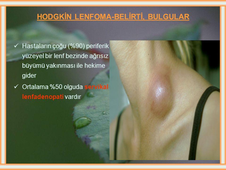 HODGKİN LENFOMA-BELİRTİ, BULGULAR