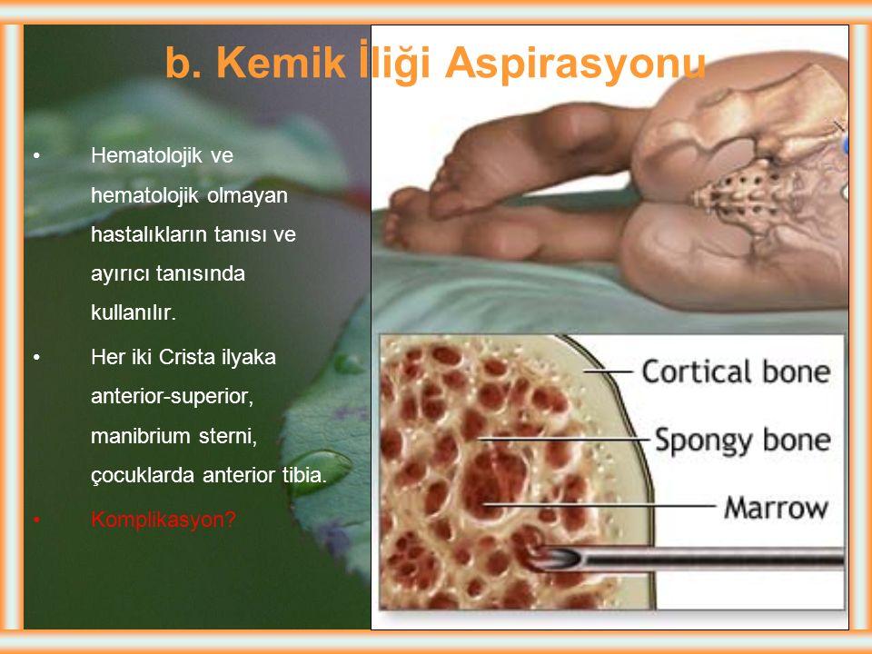 b. Kemik İliği Aspirasyonu