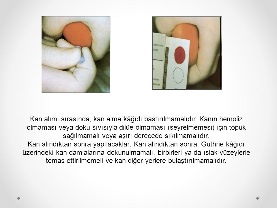 Kan alımı sırasında, kan alma kâğıdı bastırılmamalıdır