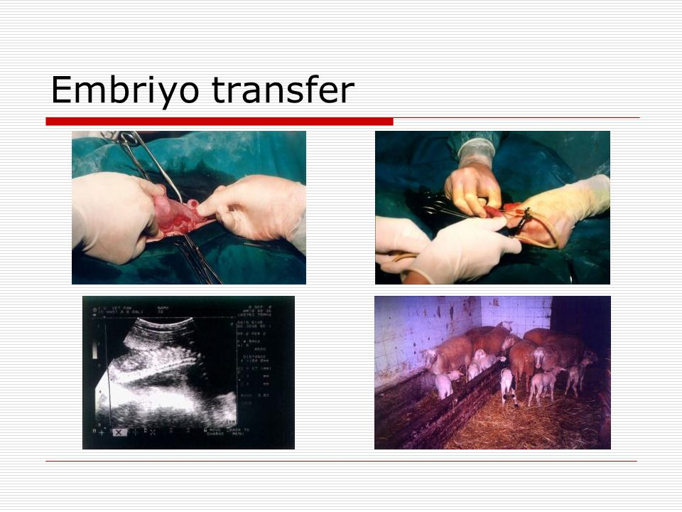 Embriyo transfer 33