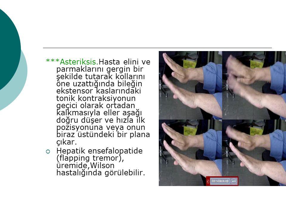 ***Asteriksis.Hasta elini ve parmaklarını gergin bir şekilde tutarak kollarını öne uzattığında bileğin ekstensor kaslarındaki tonik kontraksiyonun geçici olarak ortadan kalkmasıyla eller aşağı doğru düşer ve hızla ilk pozisyonuna veya onun biraz üstündeki bir plana çıkar.