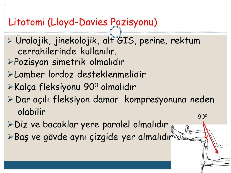 Litotomi (Lloyd-Davies Pozisyonu)