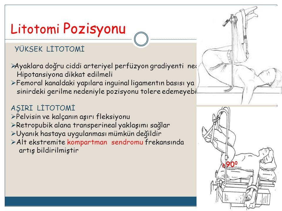 Litotomi Pozisyonu YÜKSEK LİTOTOMİ