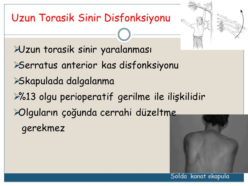 Uzun Torasik Sinir Disfonksiyonu
