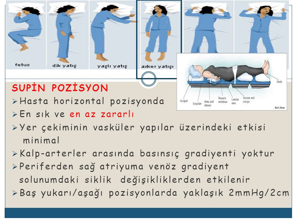 SUPİN POZİSYON Hasta horizontal pozisyonda. En sık ve en az zararlı. Yer çekiminin vasküler yapılar üzerindeki etkisi.