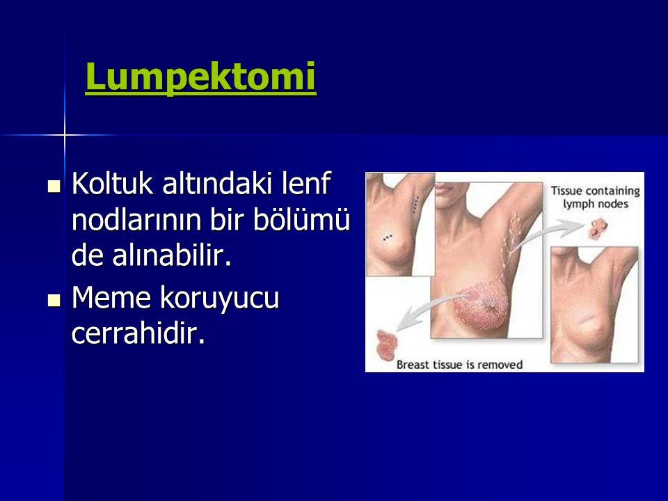 Lumpektomi Koltuk altındaki lenf nodlarının bir bölümü de alınabilir.