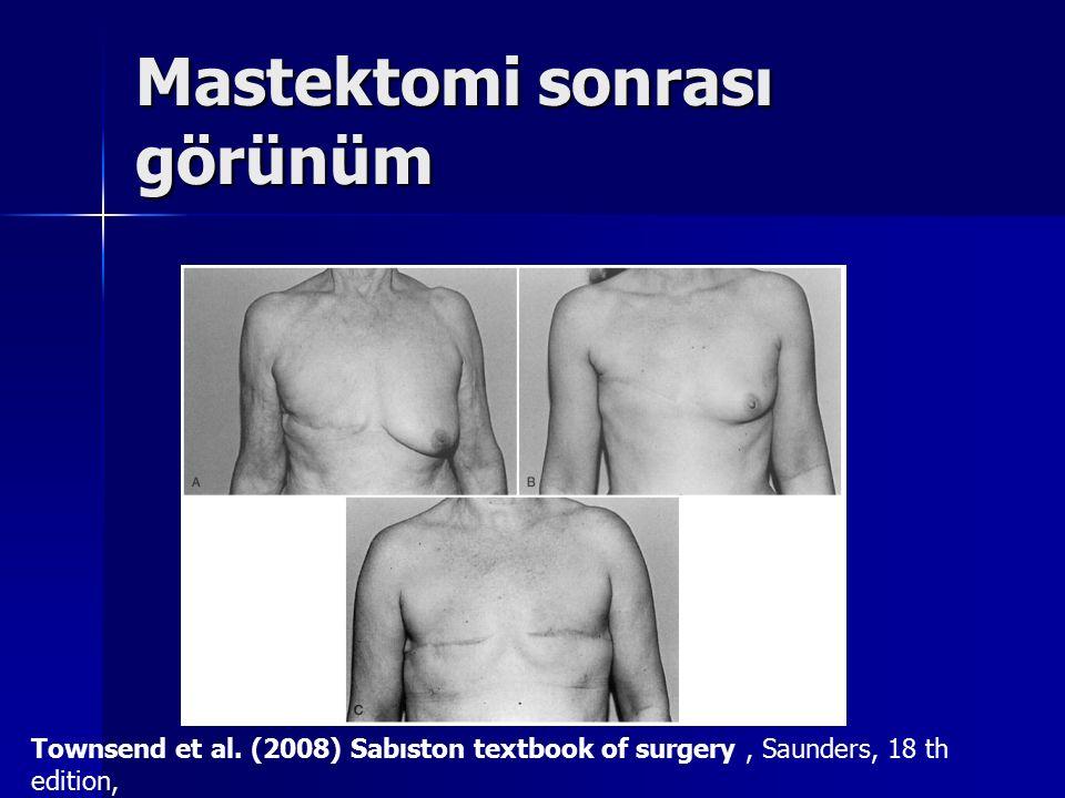 Mastektomi sonrası görünüm