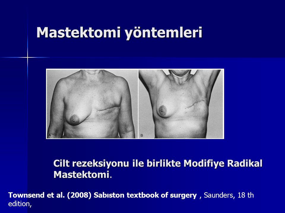 Mastektomi yöntemleri