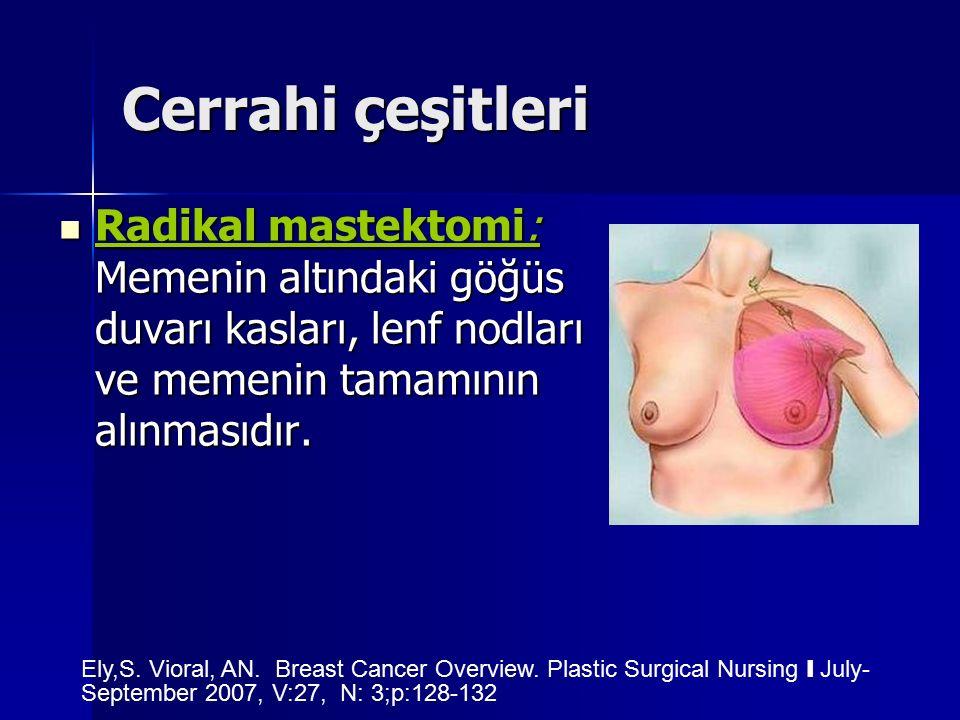Cerrahi çeşitleri Radikal mastektomi: Memenin altındaki göğüs duvarı kasları, lenf nodları ve memenin tamamının alınmasıdır.