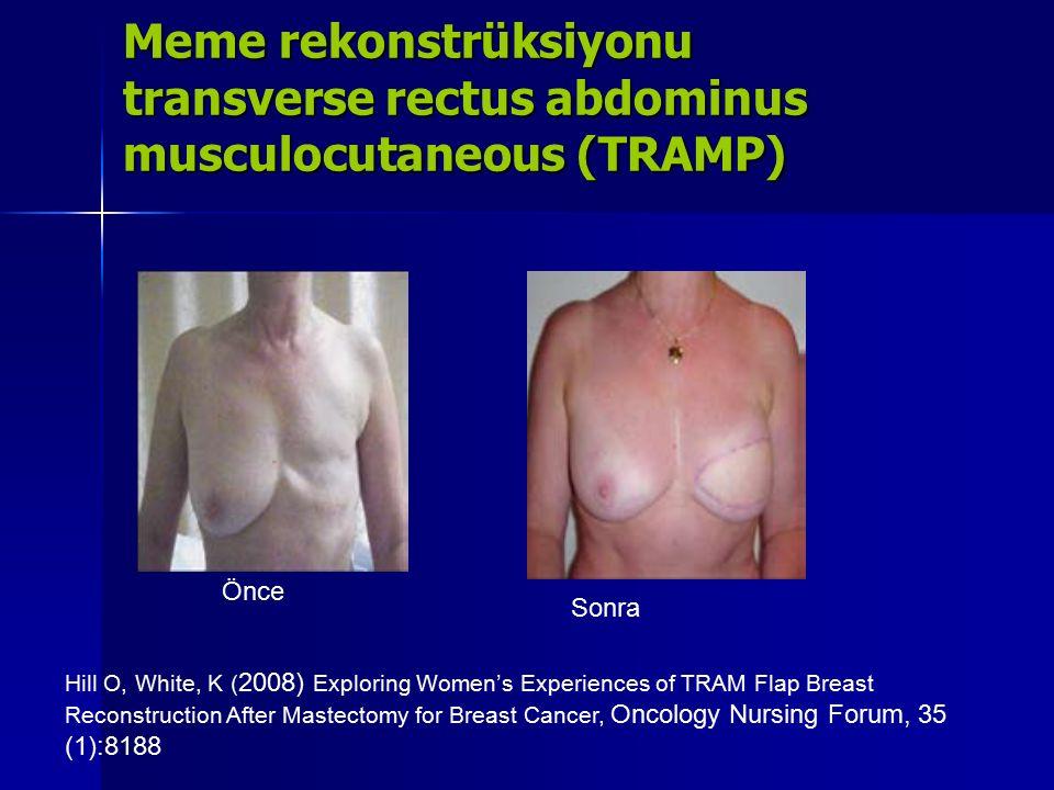 Meme rekonstrüksiyonu transverse rectus abdominus musculocutaneous (TRAMP)