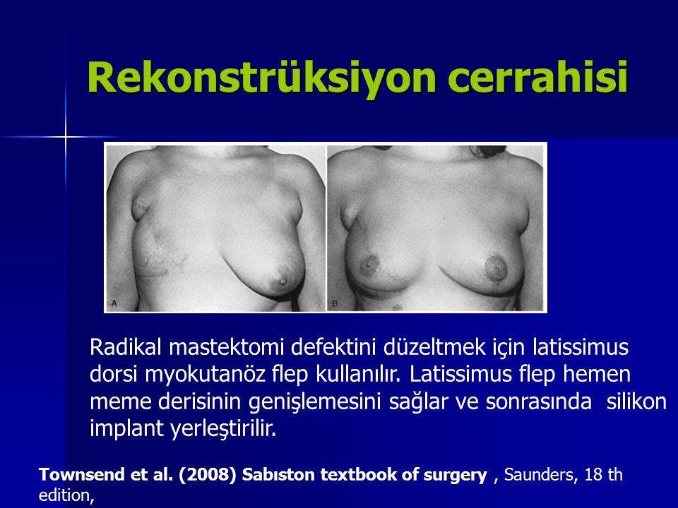 Rekonstrüksiyon cerrahisi