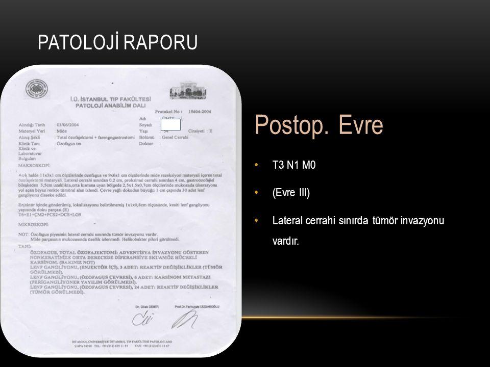 Postop. Evre Patolojİ Raporu T3 N1 M0 (Evre III)