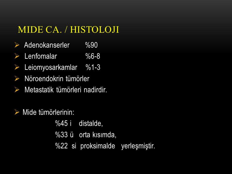 Mide Ca. / Histoloji Adenokanserler %90 Lenfomalar %6-8
