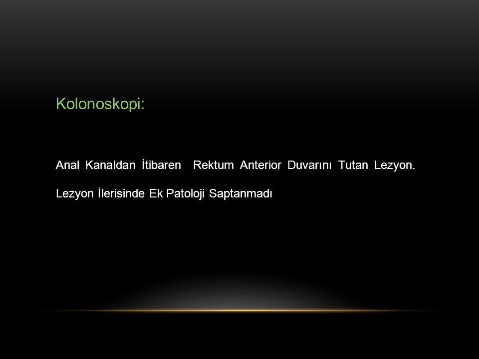Kolonoskopi: Anal Kanaldan İtibaren Rektum Anterior Duvarını Tutan Lezyon.