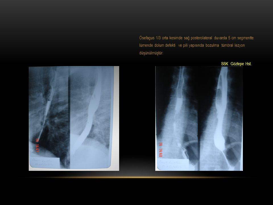 Ösefagus 1/3 orta kesimde sağ posterolateral duvarda 5 cm segmentte lümende dolum defekti ve pili yapısında bozulma tümöral lezyon düşünülmüştür.