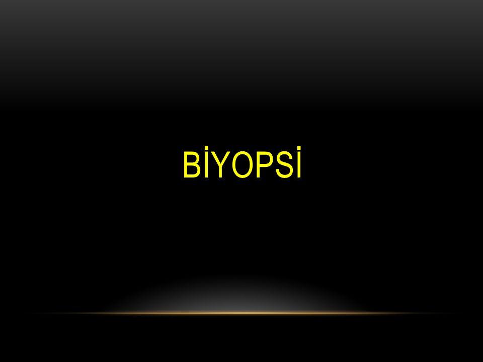 BİYOPSİ