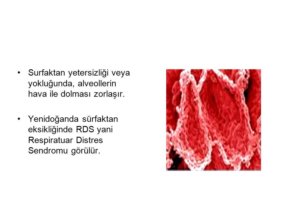 Surfaktan yetersizliği veya yokluğunda, alveollerin hava ile dolması zorlaşır.