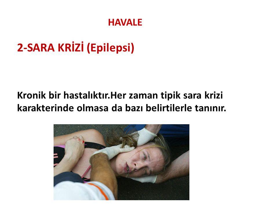 2-SARA KRİZİ (Epilepsi)