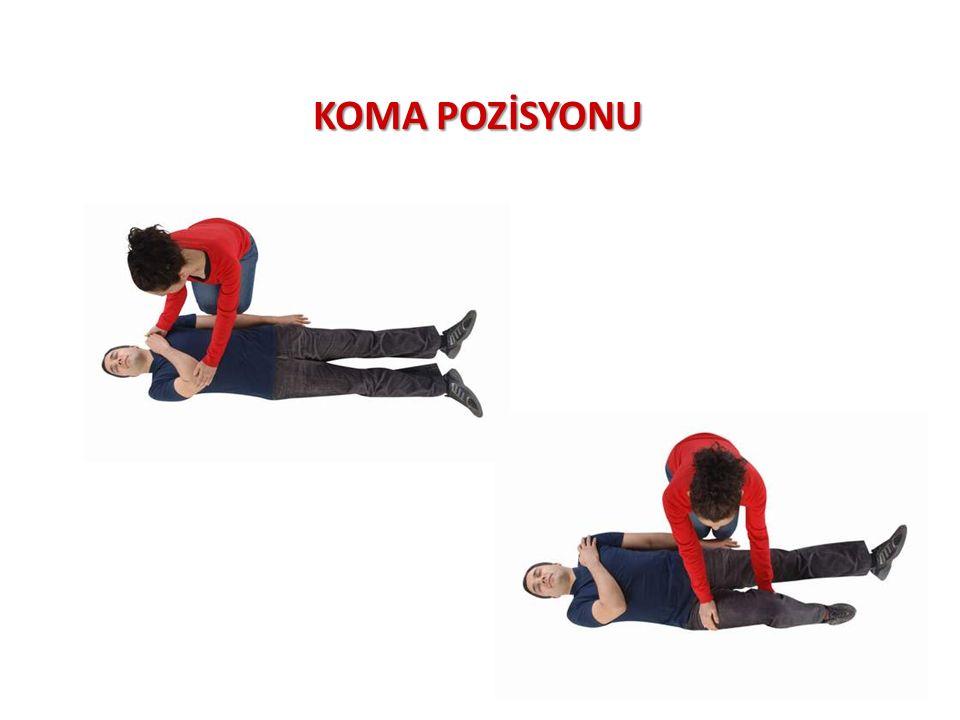 KOMA POZİSYONU