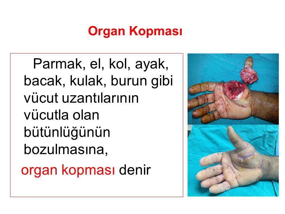 Organ Kopması Parmak, el, kol, ayak, bacak, kulak, burun gibi vücut uzantılarının vücutla olan bütünlüğünün bozulmasına, organ kopması denir