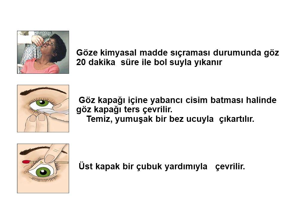 Göze kimyasal madde sıçraması durumunda göz 20 dakika süre ile bol suyla yıkanır Göz kapağı içine yabancı cisim batması halinde göz kapağı ters çevrilir.