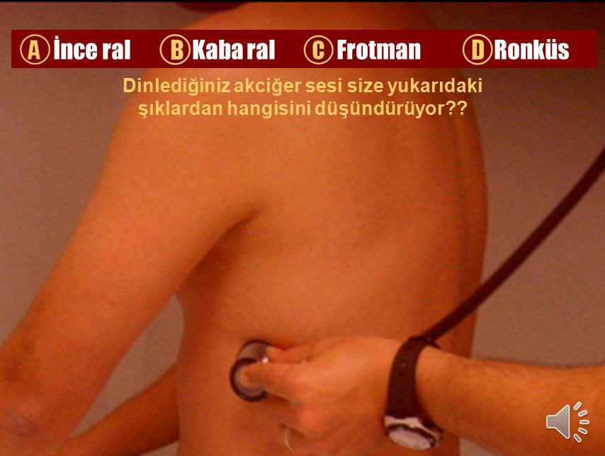A İnce ral B Kaba ral C Frotman D Ronküs