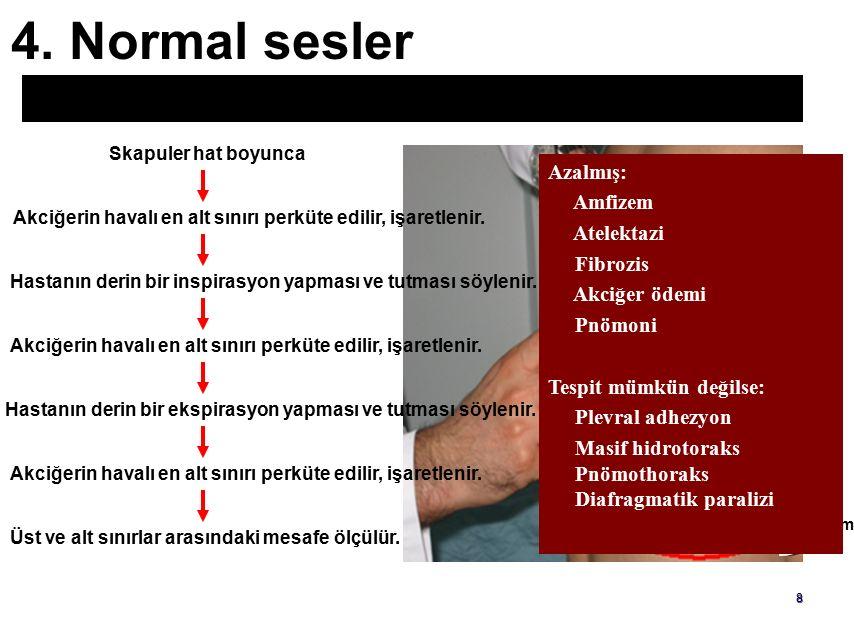 4. Normal sesler Akciğer tabanının-havalı alt sınırının yer değiştirme aralığı. Skapuler hat boyunca.