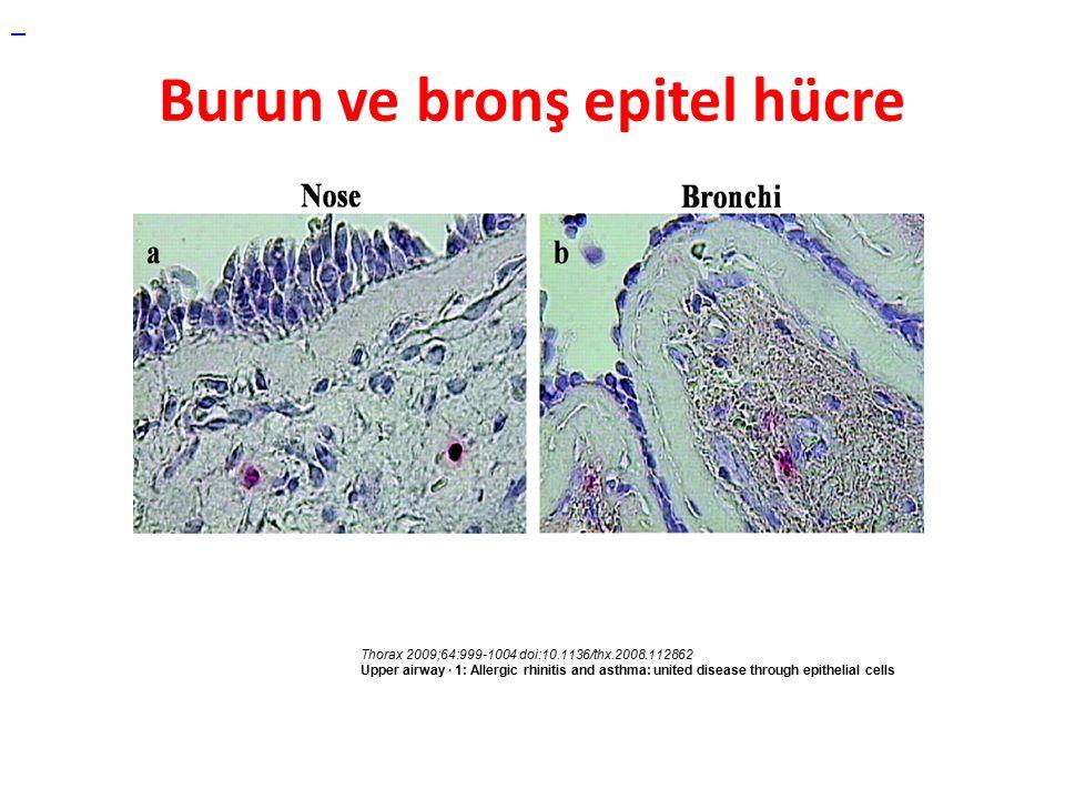 Burun ve bronş epitel hücre