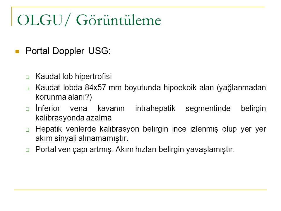 OLGU/ Görüntüleme Portal Doppler USG: Kaudat lob hipertrofisi