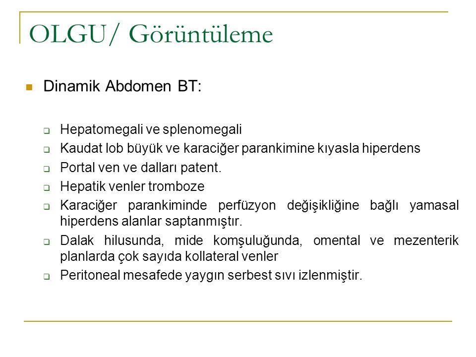 OLGU/ Görüntüleme Dinamik Abdomen BT: Hepatomegali ve splenomegali