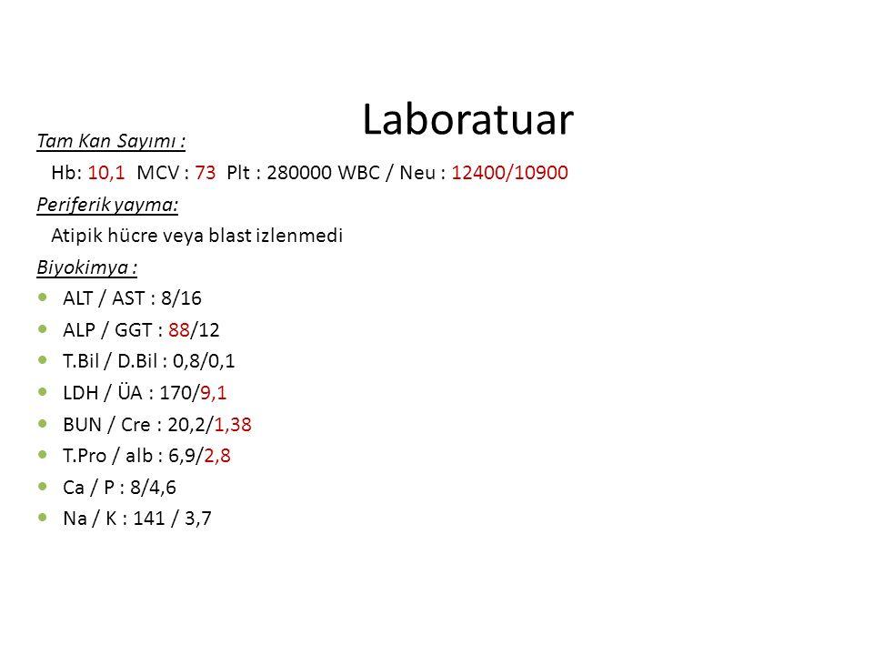 Laboratuar Tam Kan Sayımı :
