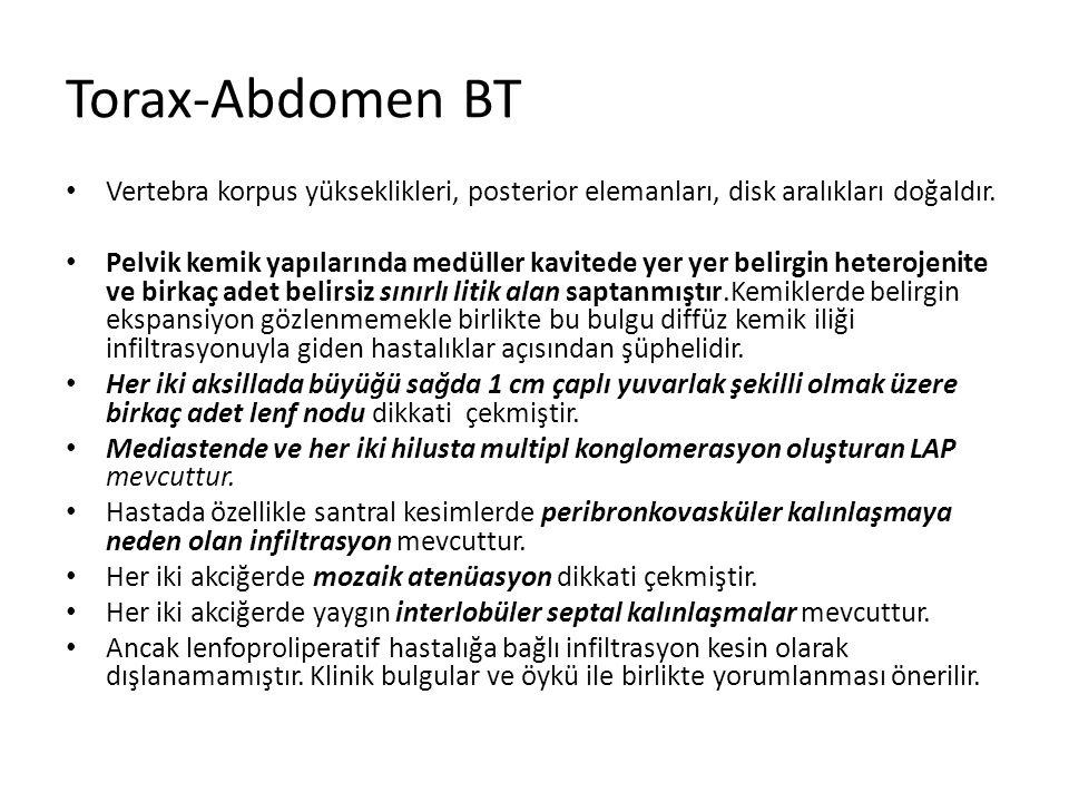 Torax-Abdomen BT Vertebra korpus yükseklikleri, posterior elemanları, disk aralıkları doğaldır.