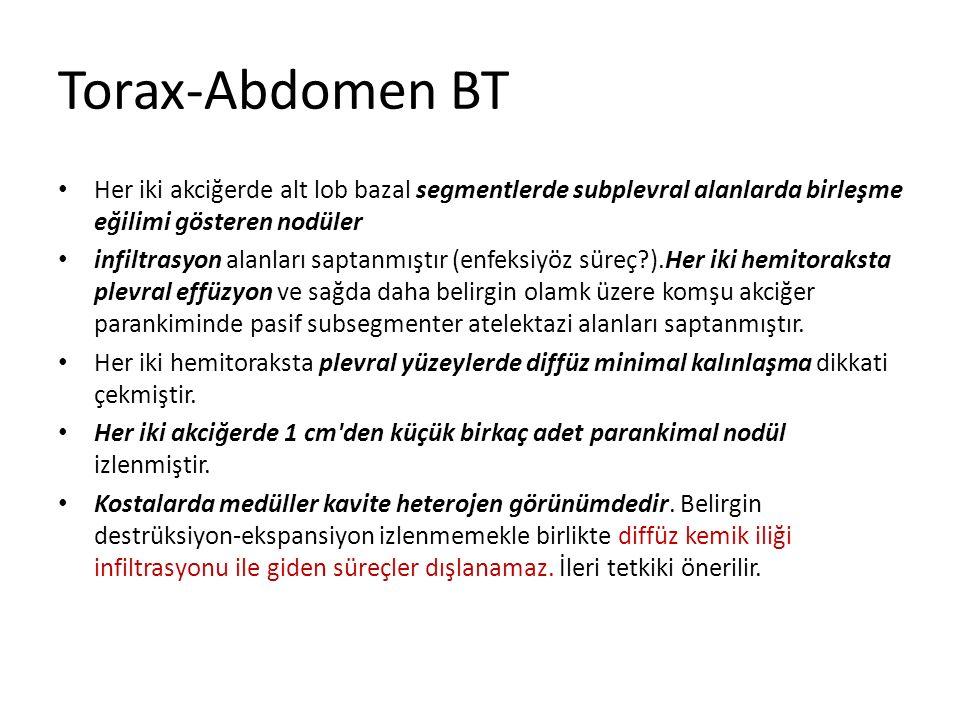 Torax-Abdomen BT Her iki akciğerde alt lob bazal segmentlerde subplevral alanlarda birleşme eğilimi gösteren nodüler.
