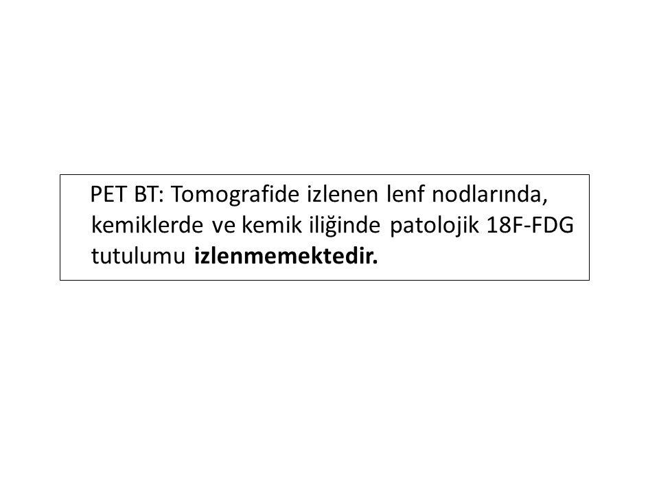 PET BT: Tomografide izlenen lenf nodlarında, kemiklerde ve kemik iliğinde patolojik 18F-FDG tutulumu izlenmemektedir.