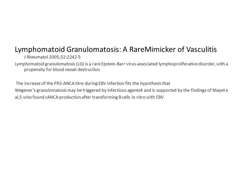 Lymphomatoid Granulomatosis: A RareMimicker of Vasculitis J Rheumatol 2005;32:2242-5