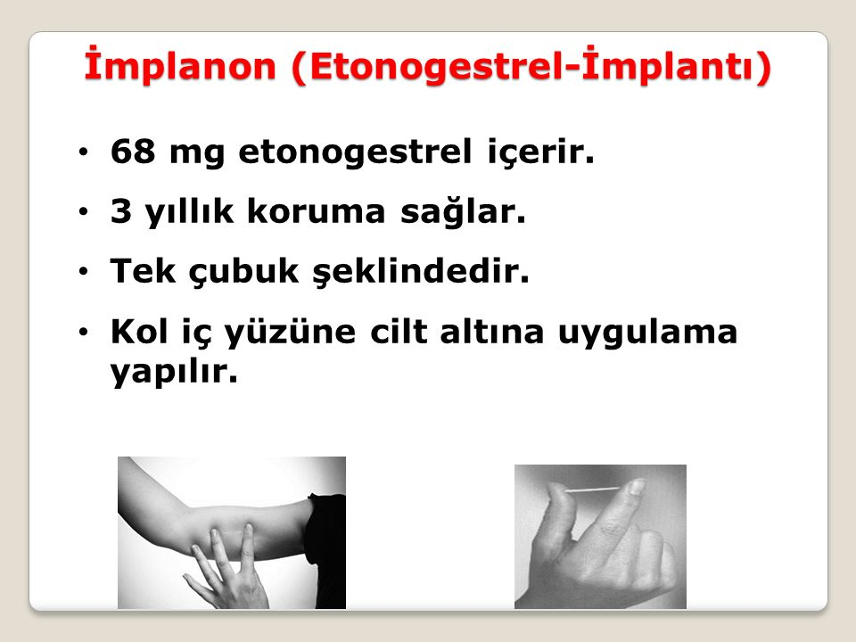 İmplanon (Etonogestrel-İmplantı)