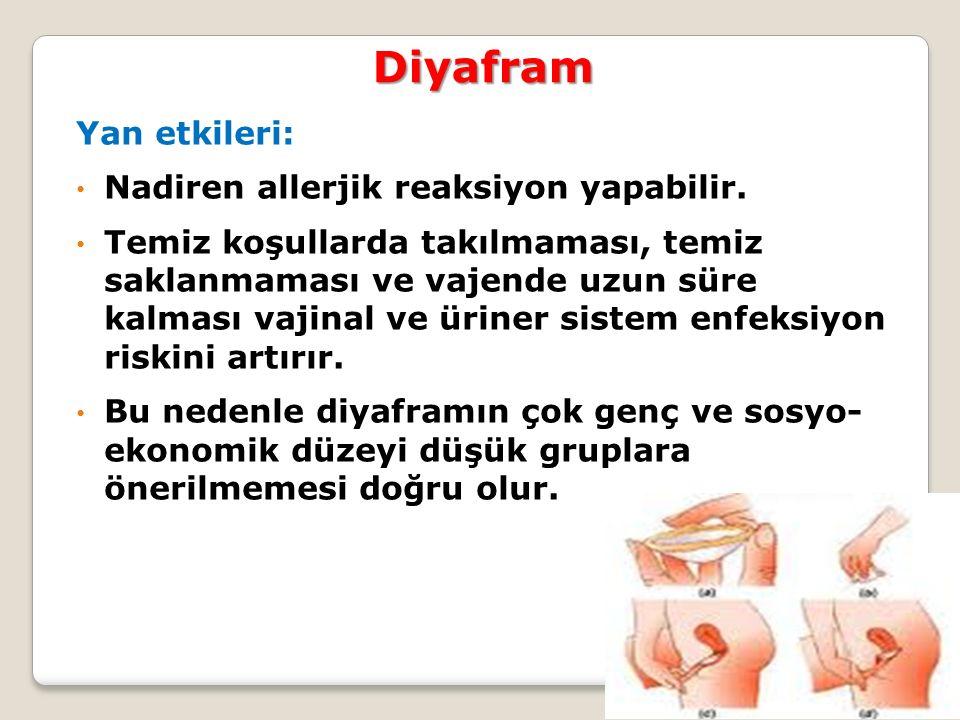 Diyafram Yan etkileri: Nadiren allerjik reaksiyon yapabilir.