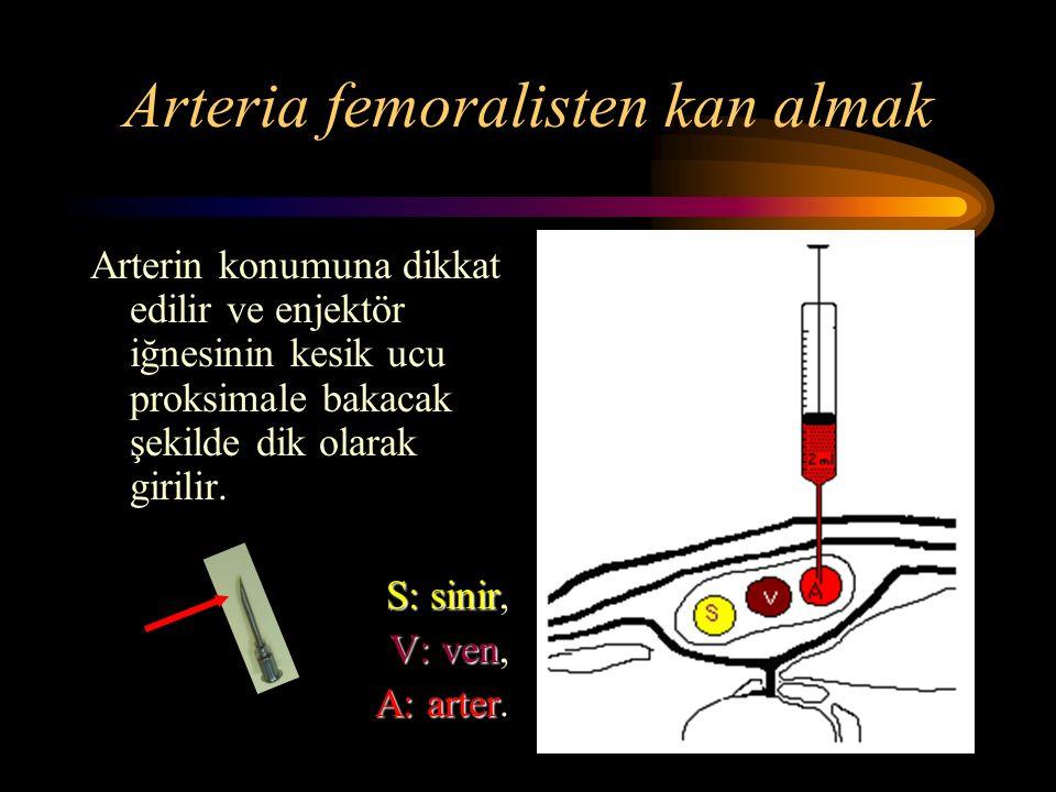 Arteria femoralisten kan almak
