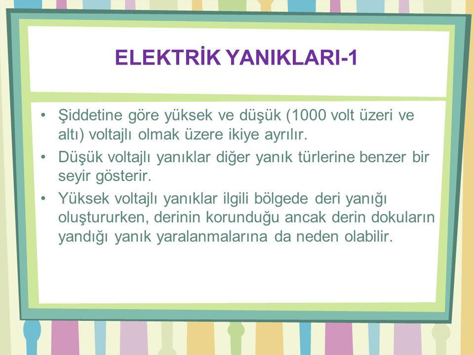 ELEKTRİK YANIKLARI-1 Şiddetine göre yüksek ve düşük (1000 volt üzeri ve altı) voltajlı olmak üzere ikiye ayrılır.